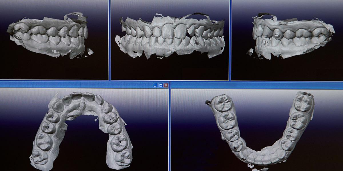Digital Intraoral Scanner images