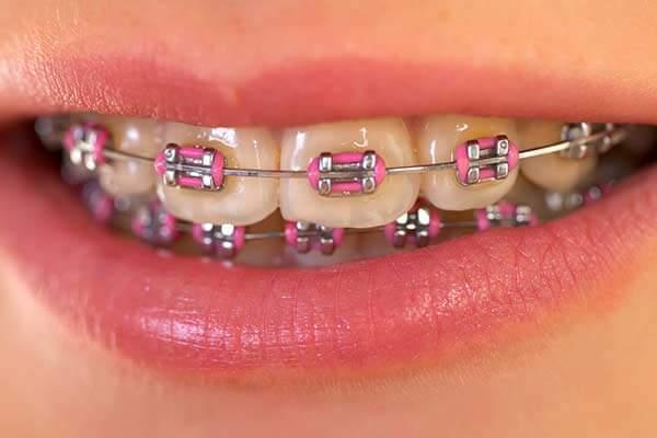 Smile with regular metal braces