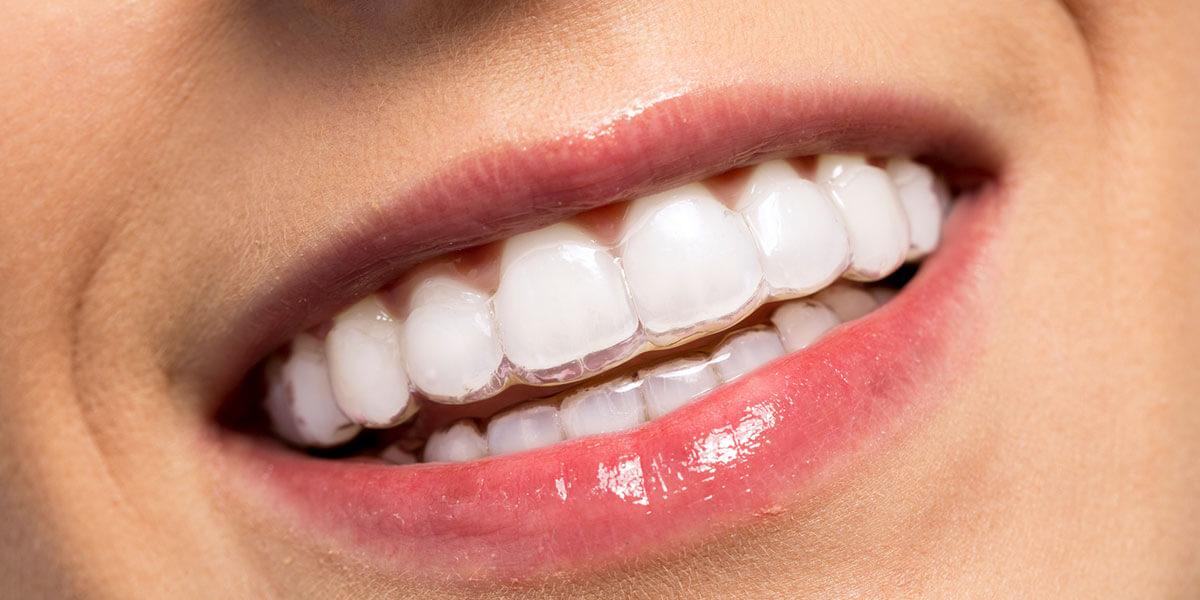 Clear aligner smile